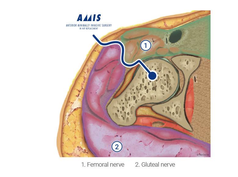 Medacta Corporate   AMIS (Anterior Minimally Invasive Surgery)