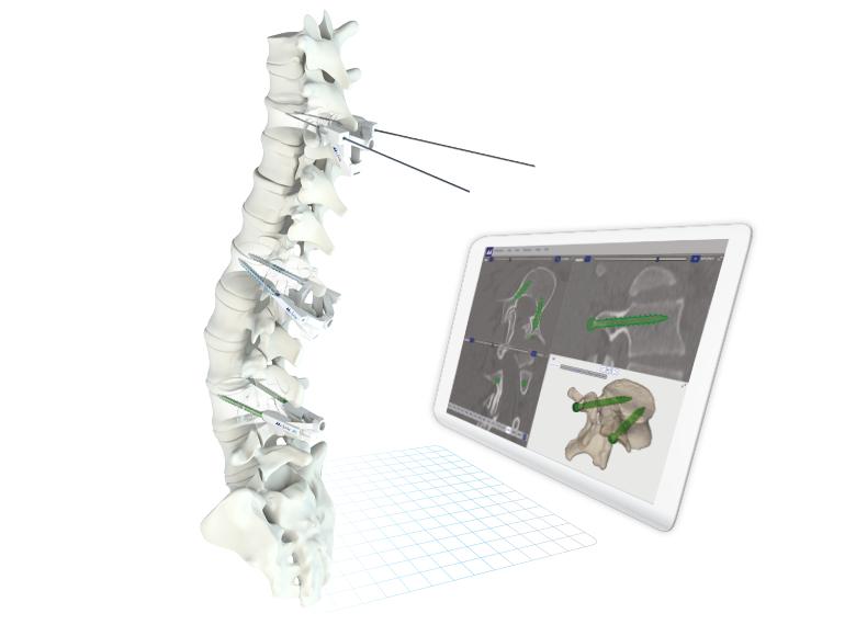 Patient Mathced Technology